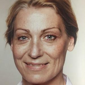 La succession de la pigmentation de la peau