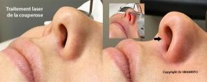 Traiter la couperose au laser Nd-Yag à la RIVIERAclinic
