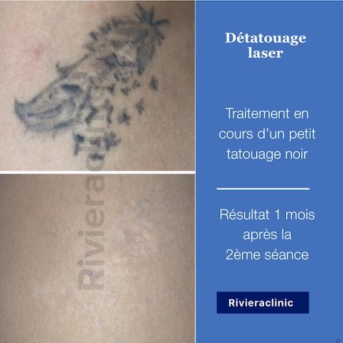 Détatouage laser d'un petit tattoo noir et ancien : résultat 1 mois après 2 séances