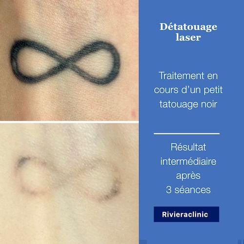 Détatouage laser d'un tatouage noir