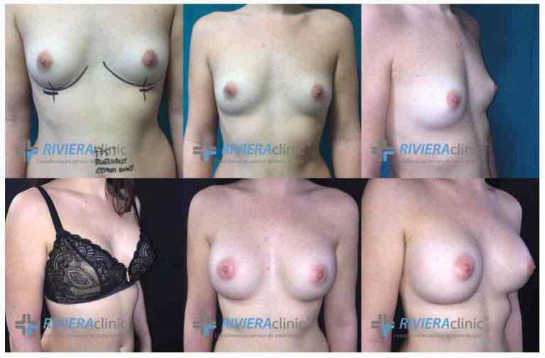 augmentation mammaire sur-mesure