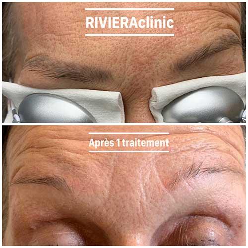 Résultat de détatouage laser des sourcils