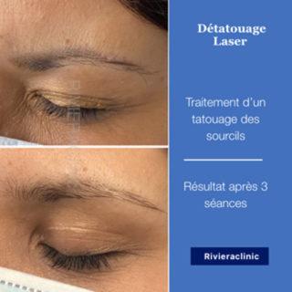 Résultat de détatouage laser