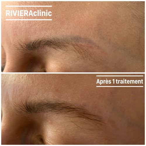 détatouage laser de la queues du sourcil