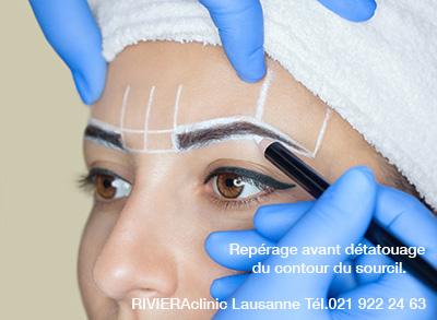 Repérage avant laser PICOSURE sur dermopigmentation du sourcil